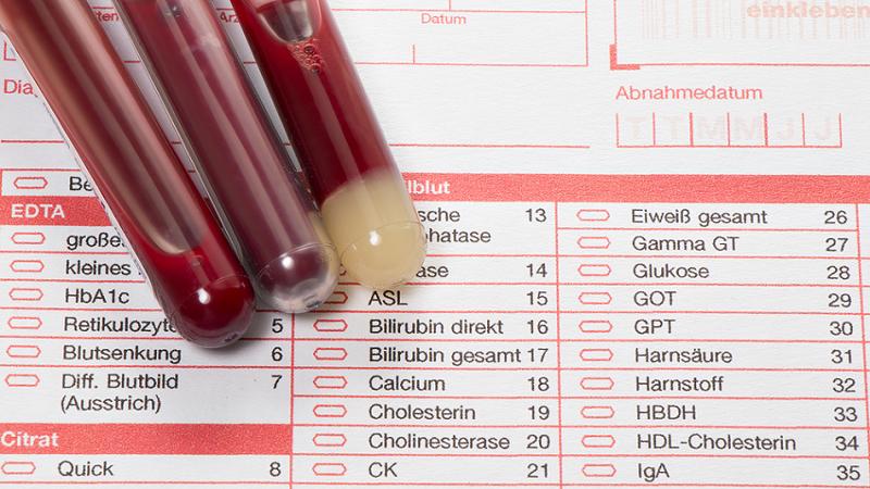 Großes blutbild drogen | ᐅ Was ist ein Blutbild? Erklärung