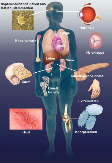 Nieren: Spender gesucht