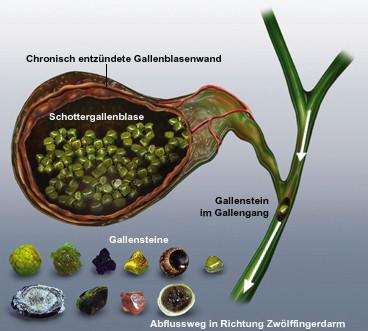 Gallensteine Ursache