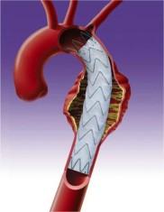 Aorta Riss