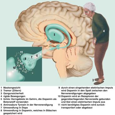 Parkinson Medikamente Neu